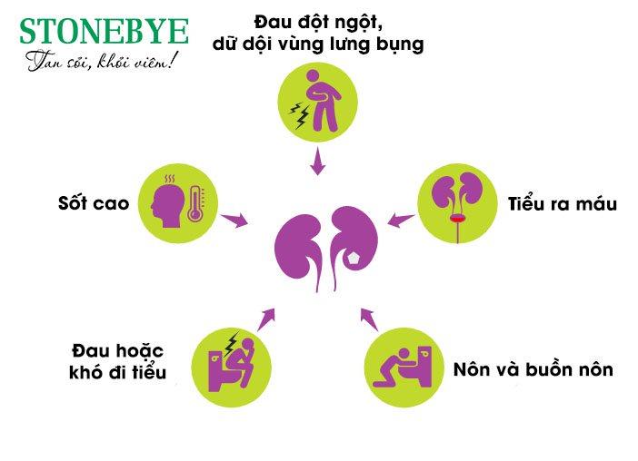 Triệu chứng bệnh sỏi đường tiết niệu không nên bỏ qua